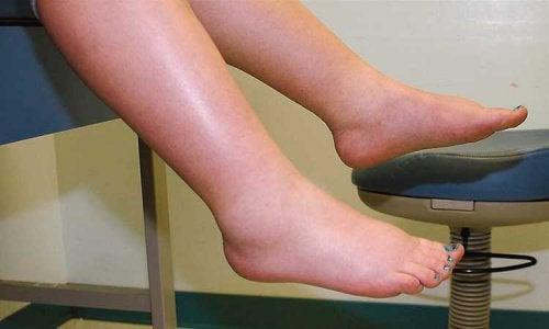 Cum să tratezi retenția de apă la nivelul picioarelor