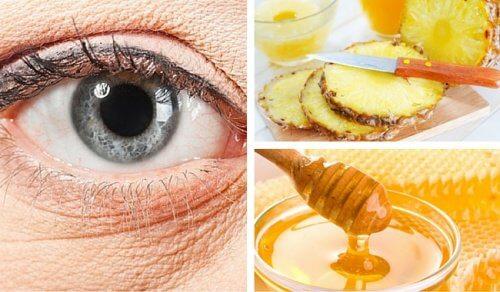 Ridurile de sub ochi – un tratament cu ananas