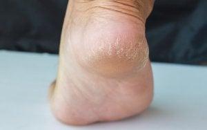 Tratamentul rănilor între degetele de la picioare