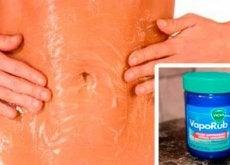 Wick VapoRub prezintă diverse utilizări medicinale alternative