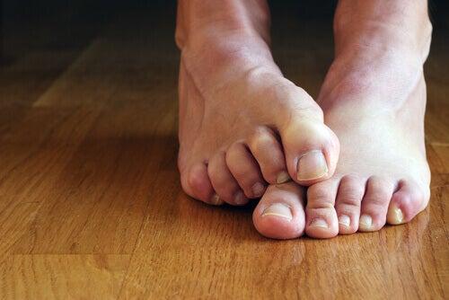 Bătăturile de la picioare se pot crăpa și infecta