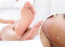 Există diverse tratamente naturiste pentru a elimina bătăturile de la picioare