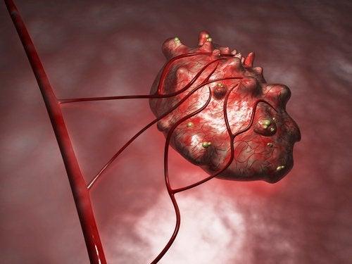 Netratate corespunzător, chisturile ovariene pot provoca complicații