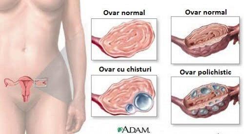 Chisturile ovariene afectează milioane de femei din toată lumea