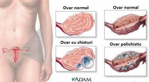 9 informații utile despre chisturi ovariene