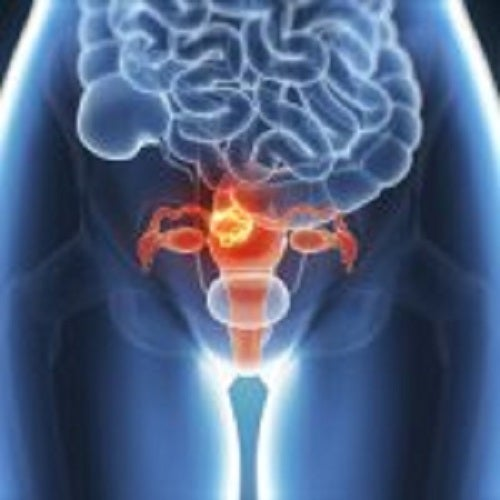 Momentan, endometrioza este o boală fără leac