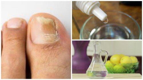 Onicomicoza poate fi învinsă cu diverse tratamente naturale
