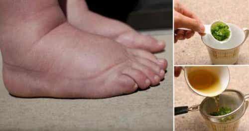 Cel mai bun tratament pentru picioarele umflate