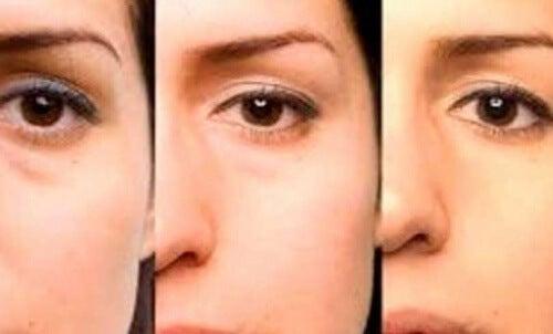 Pungile de sub ochi sunt o problemă estetică frecventă în zilele noastre
