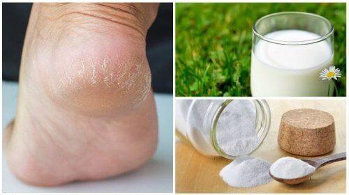 Remediu pentru picioare fine și moi