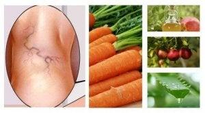 oțetul de mere și tratamentul cu varicoză