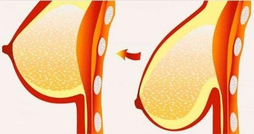 Sânii lăsați – sfaturi și tratamente