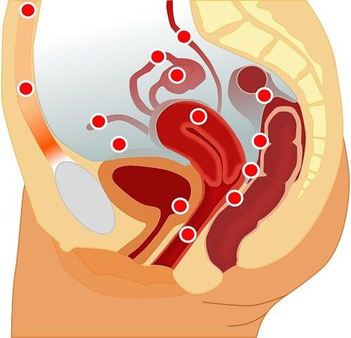 7 simptome ale endometriozei bine de știut