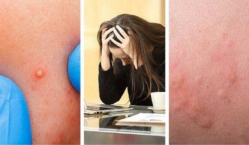 Anumite simptome fizice indică un nivel ridicat de stres