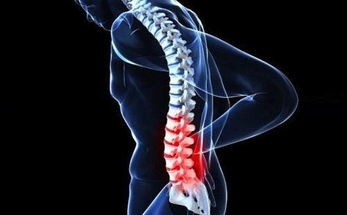 Tipuri de cancer la coloana vertebrală