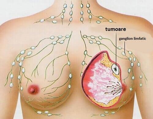 Cancerul de sân poate avea diverse cauze