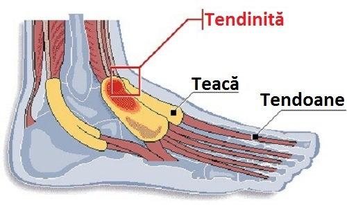 Ce este tenosinovita prezentă în picioare