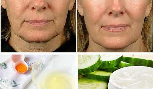 Lăsarea pielii feței - cum previi și cum o tratezi