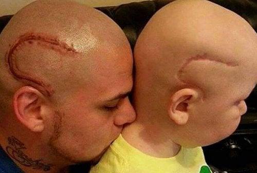 Un tată și-a tatuat cicatricea fiului bolnav de cancer