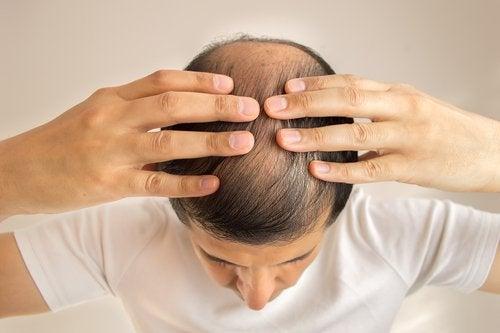 Alopecia poate semnala că ficatul tău este suprasolicitat