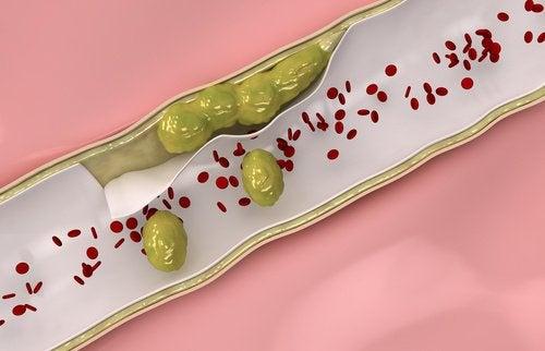 Următoarele 9 alimente te ajută să-ți cureți arterele