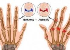 Artrita afectează atât femeile, cât și bărbații