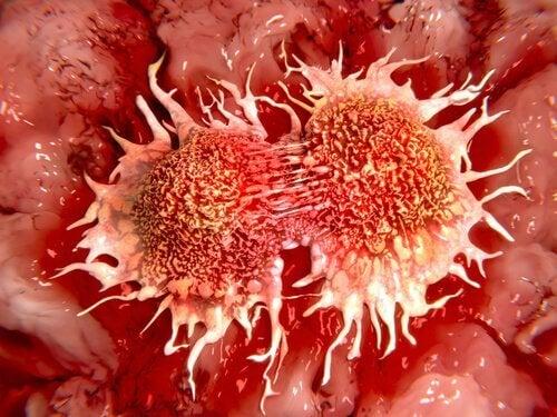 Cancerul de colon trebuie detectat la timp