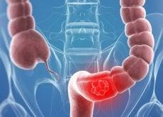 Cancerul de colon afectează din ce în ce mai multe femei