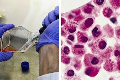 Cercetătorii au aflat cum pot face celulele leucemice să se autodistrugă