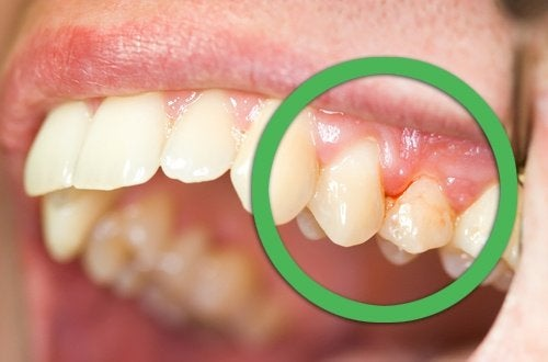 Durerea de dinți poate fi cauzată de gingivită
