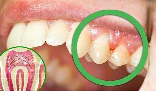 Durerea de dinți: 6 cauze frecvente