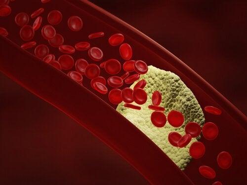 Hipertensiunea arterială poate influența pierderea vederii