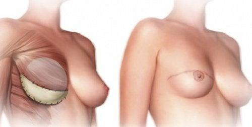 O mastectomie poate fi necesară pentru a trata cancerul mamar