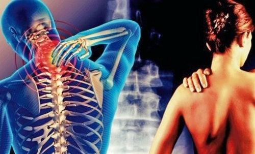 Nevralgia cervico-brahială afectează multe persoane
