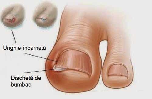 6 remedii naturiste pentru unghiile încarnate