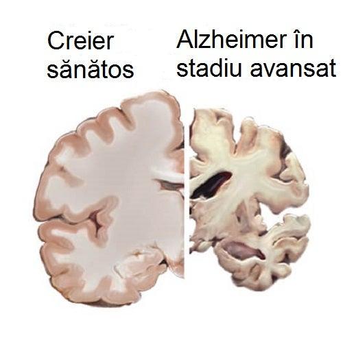 Boala Alzheimer deteriorează creierul