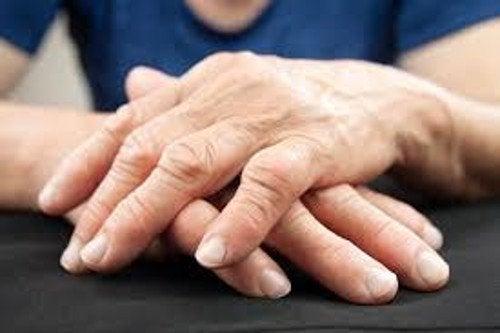 Sa- descoperit o metodă nouă de a trata artrita