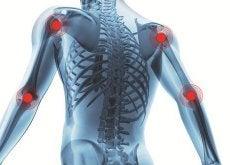 Artrita provoacă dureri și inflamații