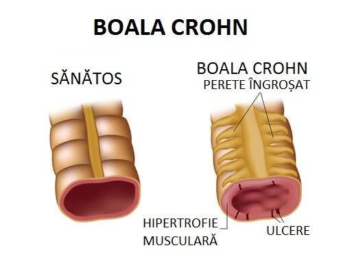 Printre altele, boala Crohn poate cauza durere