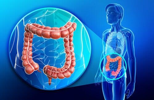 Boala Crohn afectează intestinele