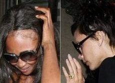 Căderea părului este o problemă foarte inestetică