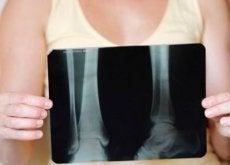Chiar este posibil să-ți menții sănătatea osoasă după menopauză