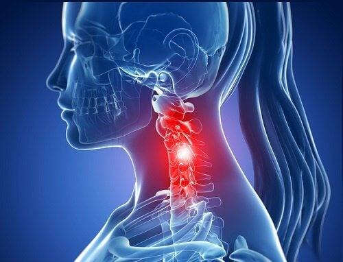 Durerile cervicale pot fi remediate în mod natural