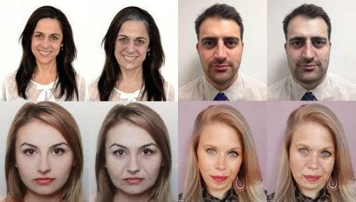 10 efecte negative ale stresului asupra înfățișării tale