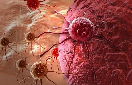 În cazuri rare, indigestia poate fi cauzată de anumite tipuri de cancer