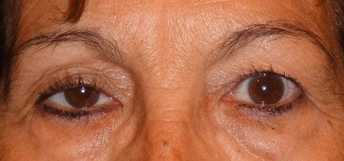 Pleoapele căzute pot indica o problemă cu ochii