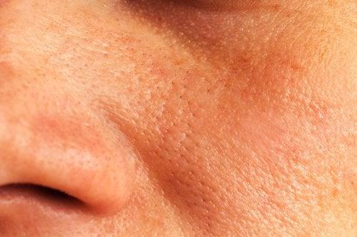 Porii măriți – 7 remedii naturiste