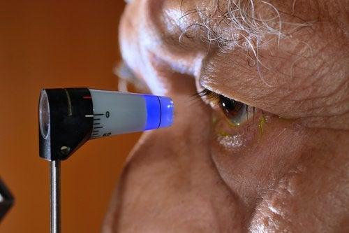 Metode naturale de prevenire a glaucomului