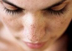 Punctele negre și petele de pe față pot fi eliminate cu remedii naturale