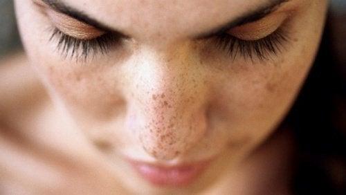 Punctele negre și petele de pe față: 6 remedii naturale